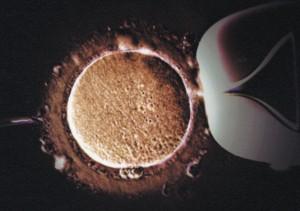 in-vitro_fertilization